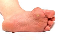 What Are The Treatment Options for Bunions?