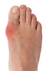 Painful Gout Attacks