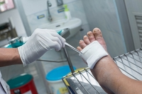 Wounds on the Feet May Lead to Foot Ulcers
